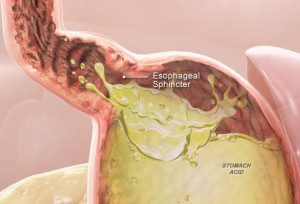 Acid Reflux (GERD) Graphic